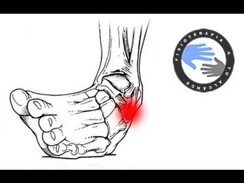 Esguince de tobillo, tratamiento en fase aguda o de urgencias / Fisioterapia a tu alcance