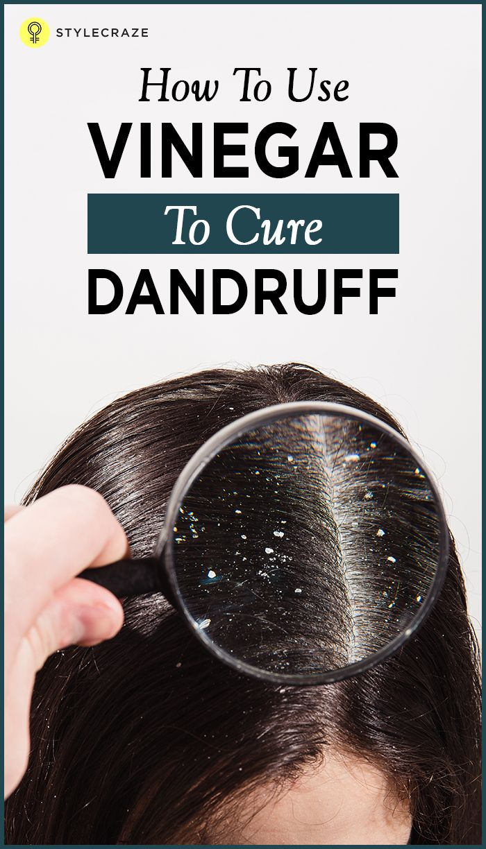 Dandruff can be dry and flaky or just icky and sticky, causing severe itchiness and dryness of the scalp. It is caused due to a number of factors and whatever the cause may be, the appearance of dandruff does not look appealing. You can this dandruff problem using vinegar. Here's how! #HairCare