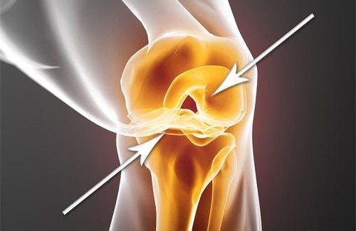 Come rigenerare la cartilagine danneggiata - Vivere più sani
