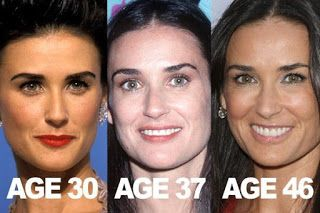 Demi Moore – has had some help from Botox, Fillers and probably Peels, Laser Skin Resurfacing, Laser Skin Tightening and IPL Photofacial to help keep her youthfulness over the years
