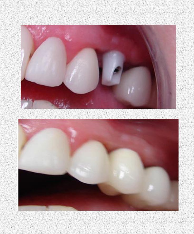 !!!Dental Implants For Perfect Solution !!! http://www.drblasco.com/solutions.html