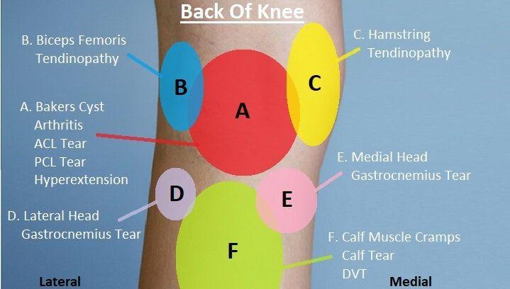 Pin On Knee Pain Diagnosis