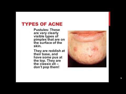 Different Types Acne   Types Acne Scars   Acne Types -  CLICK HERE for the Acne No More program #acne #acnetreatment #acnetips #acnecare Click Here to Cure Your Acne: Different Types Acne   Types Acne Scars   Acne Types The 2 Day Acne Cure will change the way you look at your disease and the way you treat it. It will give you a whole new outlook and... - #Acne