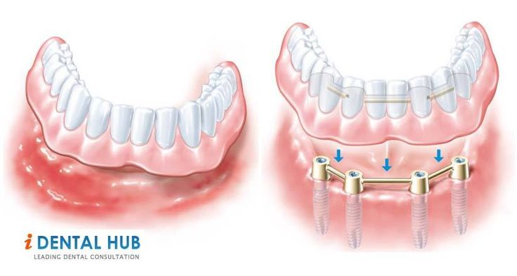 How to Select your Implant Dentist Great article,useful information