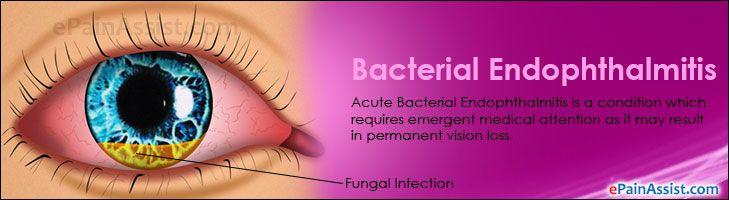 Bacterial Endophthalmitis Read More: http://www.epainassist.com/eye-pain/bacterial-endophthalmitis