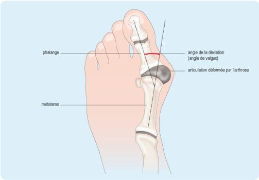 Débarrassez-vous des oignons de pieds avec ces remèdes simples