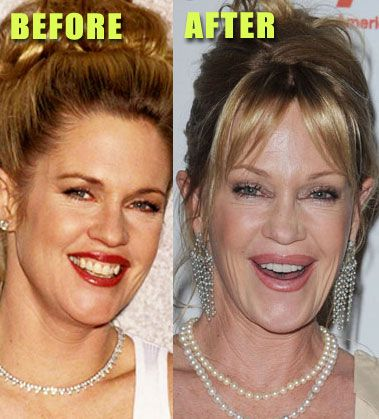 Melanie Griffith Plastic Surgery Before After - http://www.celeb-surgery.com/melanie-griffith-plastic-surgery-before-after/?Pinterest