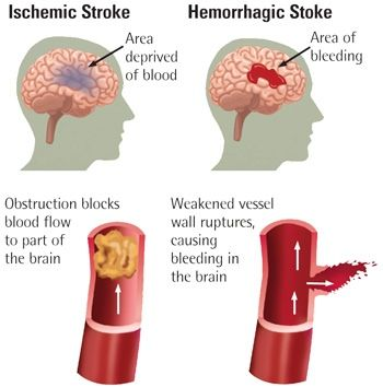 Difference between Ischemic stroke & Hemorrhagic stroke in a simpler…