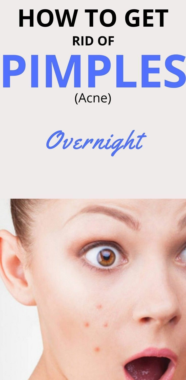 Akne-Behandlung | So entfernen Sie Pickel (Akne) über Nacht schnell. DIY Hautpflege | Natürliche Hautpflege | Tipps zur Hautpflege. #SkinCarePimples