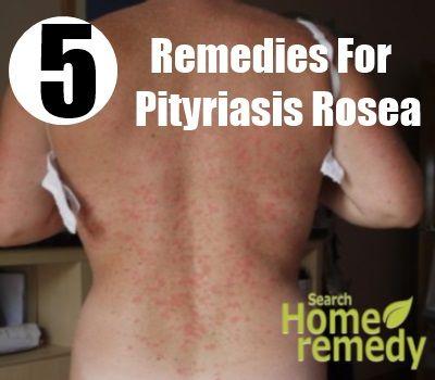 5 Best Home Remedies For Pityriasis Rosea