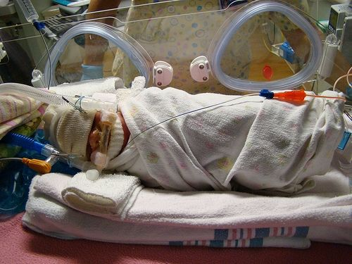 Premature Infants More Susceptible to Heart Conditions https://www.finneganmedicalsupply.com/