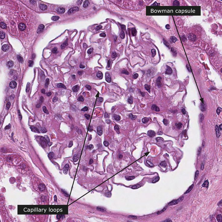 17 Best images about Kidney-Patho on Pinterest | Canada ...