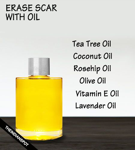Oil to fade scar - coconut, vitamin e oil, lavender etc....