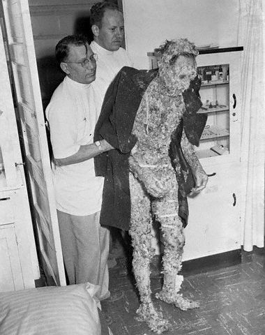 "We've all heard the term ""tarred and feathered."" The person seeking medical treatment in this photo had suffered that torment."