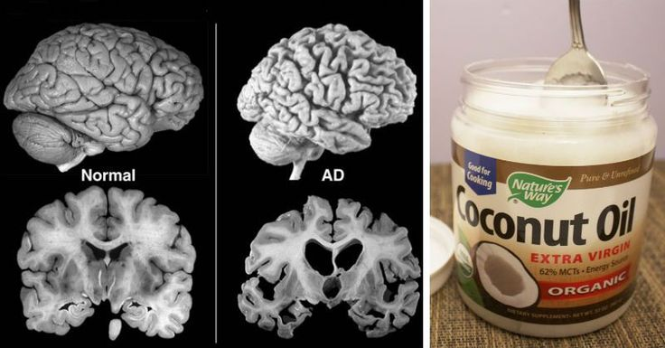 How To Treat Alzheimer's Starting With 3 Teaspoons of Coconut Oil Per Day