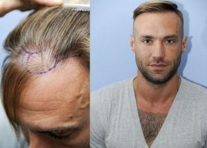 Calum Best George Son Footballer Manchester United Playboy Actor Model Reality TV Star Celebrity Big Brother | Baldness Hereditary Pate Receding Ginger Cue Ball Head Hair Loss Rogaine Transplant Plugs Treatment Follicular Unit Extraction | Belvedere Clinic Private Hospital Cosmetic Plastic Surgeons London Essex Kent UK