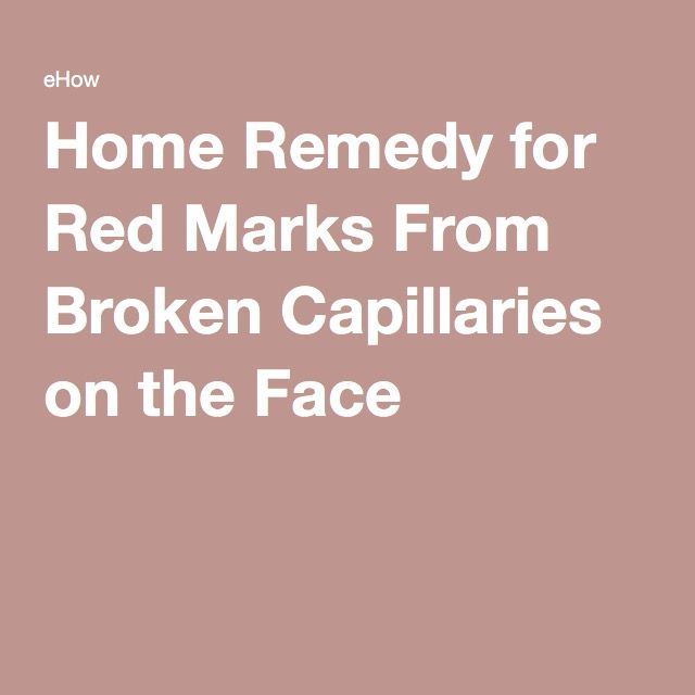 Home Remedy for Red Marks From Broken Capillaries on the Face