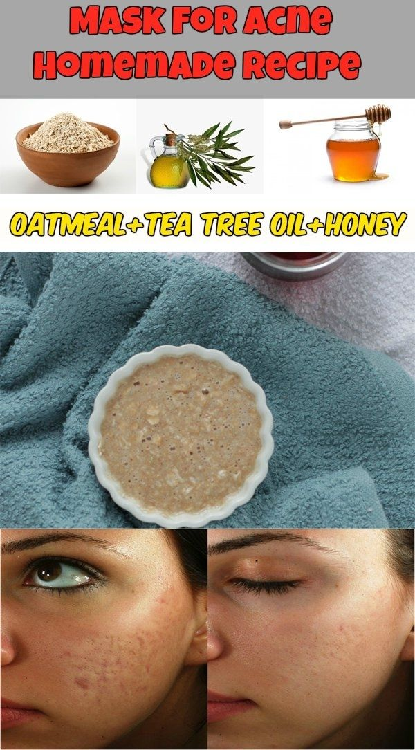 ACNE MASK – Homemade Recipe | Note:  #5 Correction...wait for the oat mixture to cool some before applying to face to avoid burning.