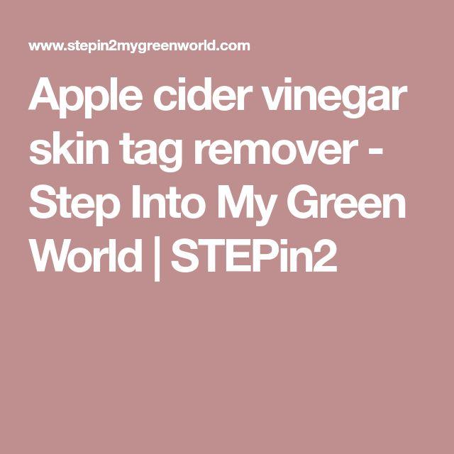 Apple cider vinegar skin tag remover - Step Into My Green World | STEPin2