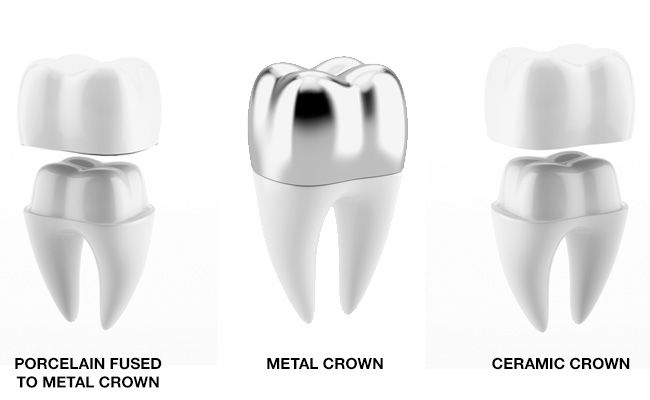 Considering Dental Crown treatment? Know how to take care before and after dental crown.