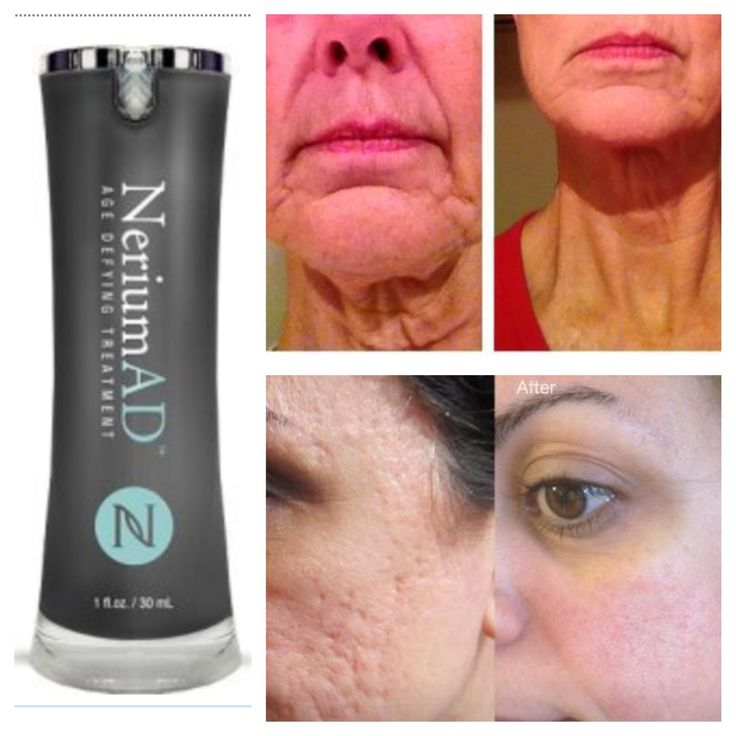 Have problem skin? Nerium AD is your answer! Want to more? Go to my page Mayaquoia.nerium.com or email me at maya.realresults@gmail
