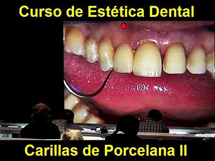 Curso de Estética Dental: Carillas de Porcelana II | Odonto-TV