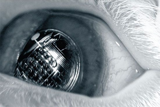 Will Smart Contact Lenses Be the Bluetooth Headsets of the Future?