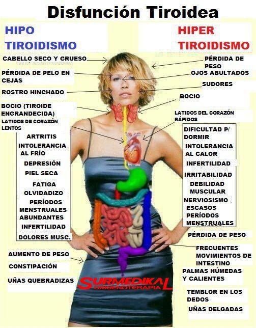 Agrandamiento de la glandula de la tiroides. Existe el bocio exoftalmico y el bocio hipotiroideo.