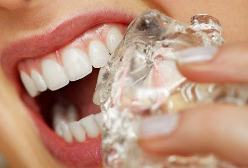 19 habits that wreck your teeth, beverages you wouldn't even think about.. not so good...other things are quite obvious (chewing on a pencil, ice cube or gummy candies).