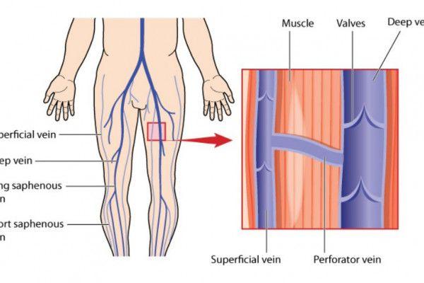 vene distinse la picioare