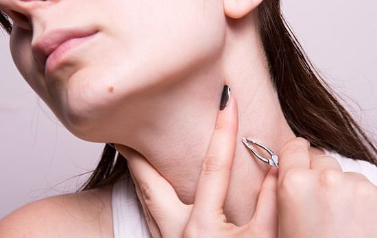 Home Remedies For Skin Tag Removal (Remove Skin Tags) Stressed and irritated over skin tags and looking for some home remedies for skin tag removal?  Skin tags are also called as acrochordons, frequently...