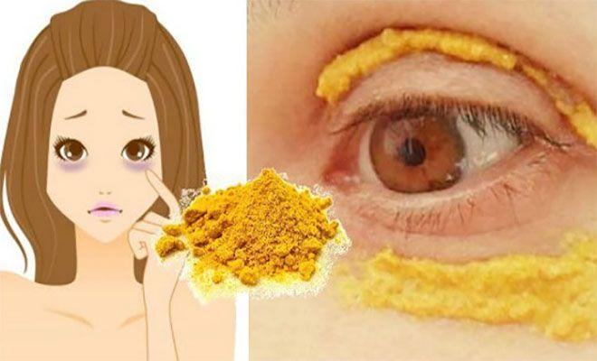 Εφαρμόστε το παρακάτω μείγμα γύρω από τα μάτια.¼ κουταλάκι του γλυκού κουρκούμη και 1 κουταλάκι του γλυκού έλαιο καρύδας.