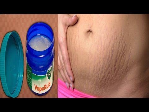ESTO ES SORPRENDENTE El Vick Vaporub sirve para eliminar grasa, celulitis y estrias.. - YouTube
