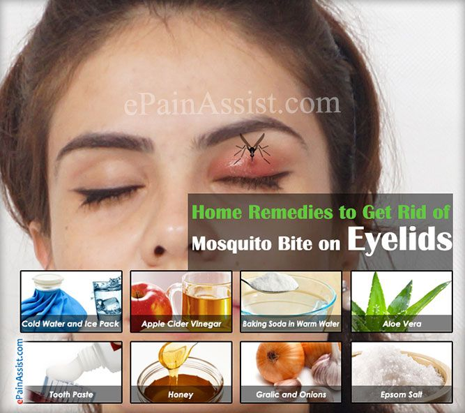 Home Remedies to Get Rid of Mosquito Bite on Eyelid #MosquitoBiteonEyelid…
