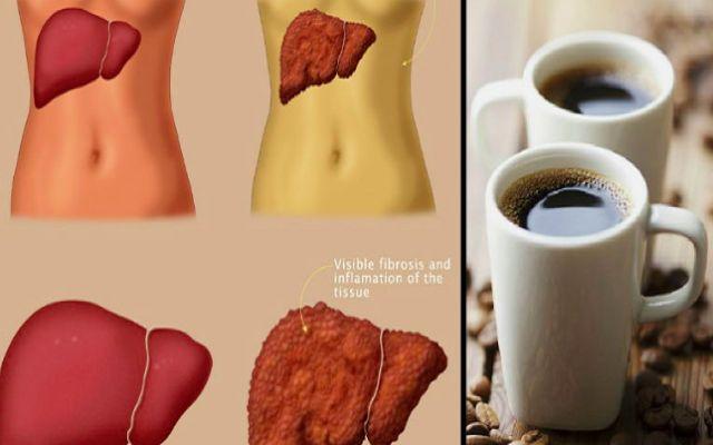 PROTÉGETE FRENTE AL CÁNCER DE HÍGADO BEBIENDO CAFÉ ¿Sabías que la cafeína actúa además como un excelente protector de nuestro hígado?
