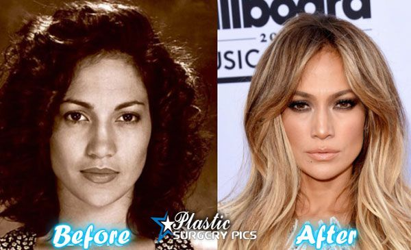 Jennifer Lopez Before and After Plastic Surgery Photos