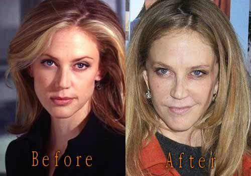 Ally Walker Plastic Surgery, Before-After. #allywalker #facelift #celebritysurgery #cosmeticsurgery #plasticsurgery #botox