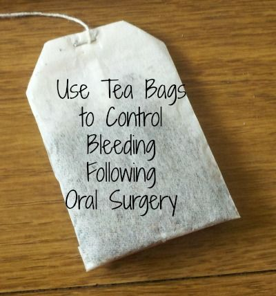 Use Tea Bags to Control Bleeding Following Oral Surgery
