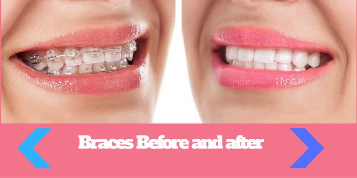 Searching forBraces Before and After ? do you want to learn how braces can…