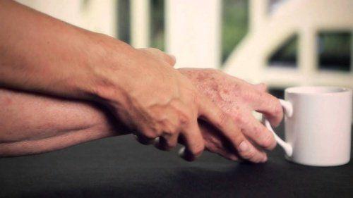 ¿Cómo detectar y sobrellevar el mal de Parkinson?.-¿Cómo sobrellevar la enfermedad de Parkinson? La mayoría de diagnósticos de mal de Parkinson se realizan teniendo en cuenta las manifestaciones clínicas y el progreso que va teniendo la enfermedad. Lamentablemente, en la actualidad no hay nada que pueda curar la enfermedad y los pacientes no tienen más opción que recurrir a tratamientos y terapias con el fin de controlar los síntomas y mantener la afección al margen. De momento, las formas…
