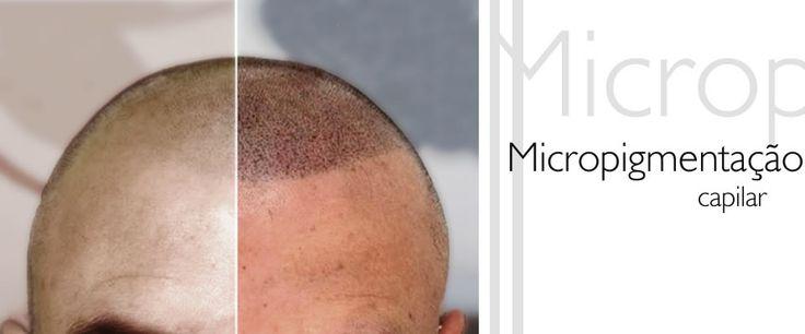 Conheça a mais avançada técnica de micropigmentação capilar, que, como uma tatuagem, disfarça a falta de cabelos, preenchendo de forma natural o couro cabeludo.