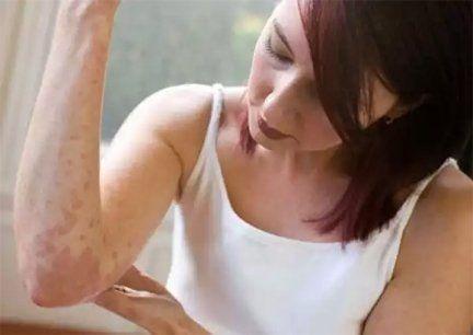 Bună! Mă numesc Linda Pop și am 36 de ani. Am decis să vă împărtășesc povestea mea despre cum am tratat psoriazisul.