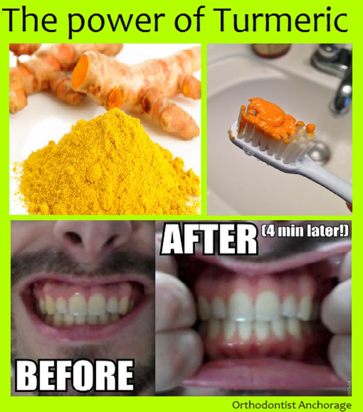 69 best Dental Fun Facts images on Pinterest