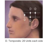 BOTOX® (onabotulinumtoxinA) for chronic migraine:  The approved dose for Chronic Migraine patients is 155 Units at 31 injection sites divided across 7 specific head/neck muscle areas. The recommended re-treatment schedule is every 12 weeks1  Temporalis: 20 Units each side