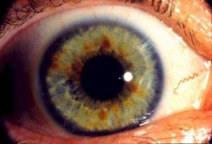 If you look very closely at the iris (the colored part) of your eyes, you can actually gauge how well your skin is eliminating toxins.