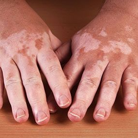 Vitiligo can indeed be treated naturally, safely, extremely cheaply and in just a few weeks. One of ...