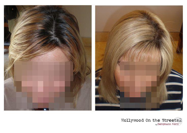 www.hos2.gr Αποτελέσματα αποκατάσταση μαλλιών με την τεχνική HOS-2. Εικόνες πριν και μετά.