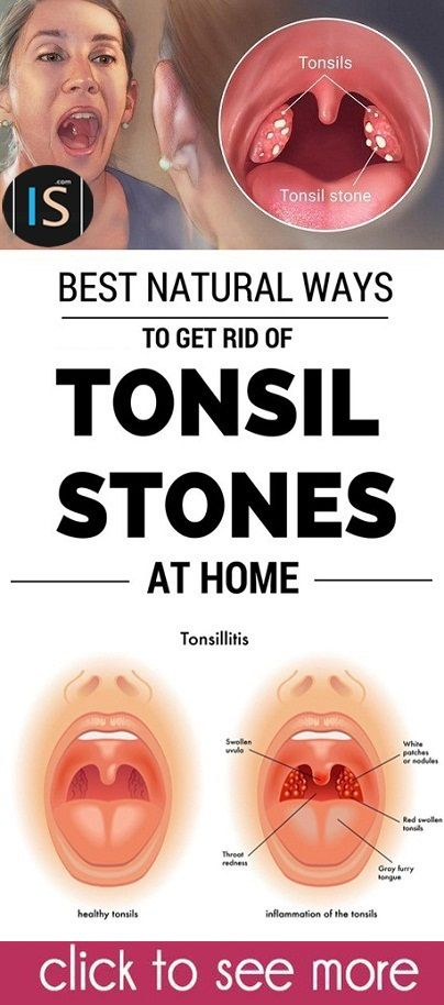 We usually associate stones in our body with kidneys. Apparently, it's not the only organ where stones can form as they might also develop in our tonsils. They hardly ever lead to more serious health complications, but they may cause some pain and swelling. Learn what are the causes, symptoms, and ways of treating tonsil …