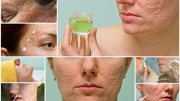 Cum se face crema naturală care vindecă cicatricele. Crema funcționează și în cazul petelor și vindecă în mod uluitor orice tip de cicatrice.