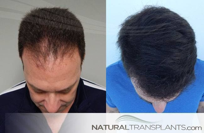 Baldness Cure | Hair Transplant Before and After #BaldnessCure